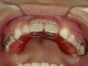 1/1.6 , Dental2 , LR