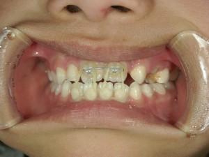 1/2.1 , Dental2 , LR