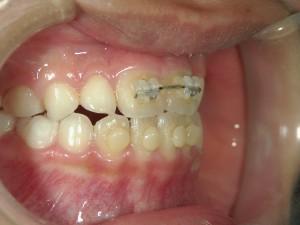 1/1.5 , Dental2 , LR