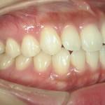 1/1.4 , Dental2 , LR