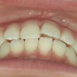 1/1.3 , Dental2 , LR