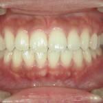 1/1.7 , Dental2 , LR