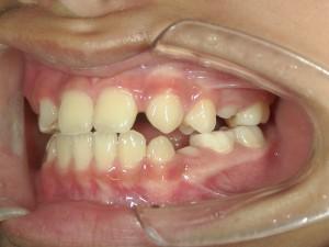 1/2.0 , Dental2 , LR