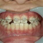 1/1.9 , Dental2 , LR
