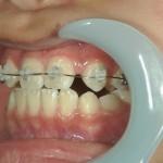 1/1.8 , Dental2 , LR