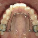 1/1.9 , Dental3 , LR